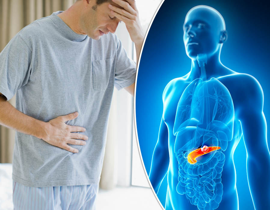 Pancreatic cancer signs and symptoms