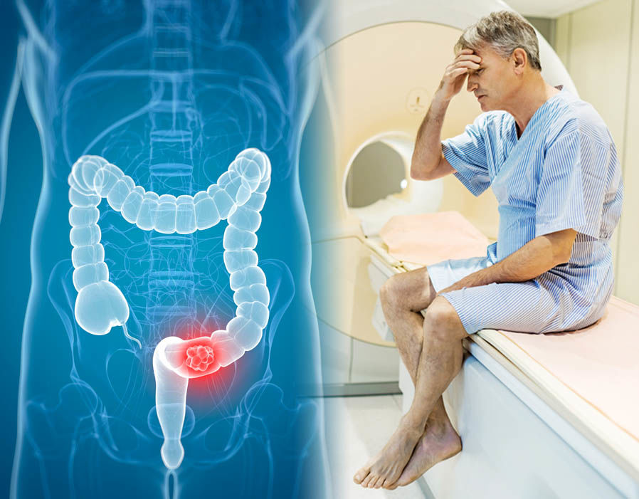 Early warning signs of cancer you shouldn't ignore