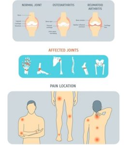 arthritis and joint pain image